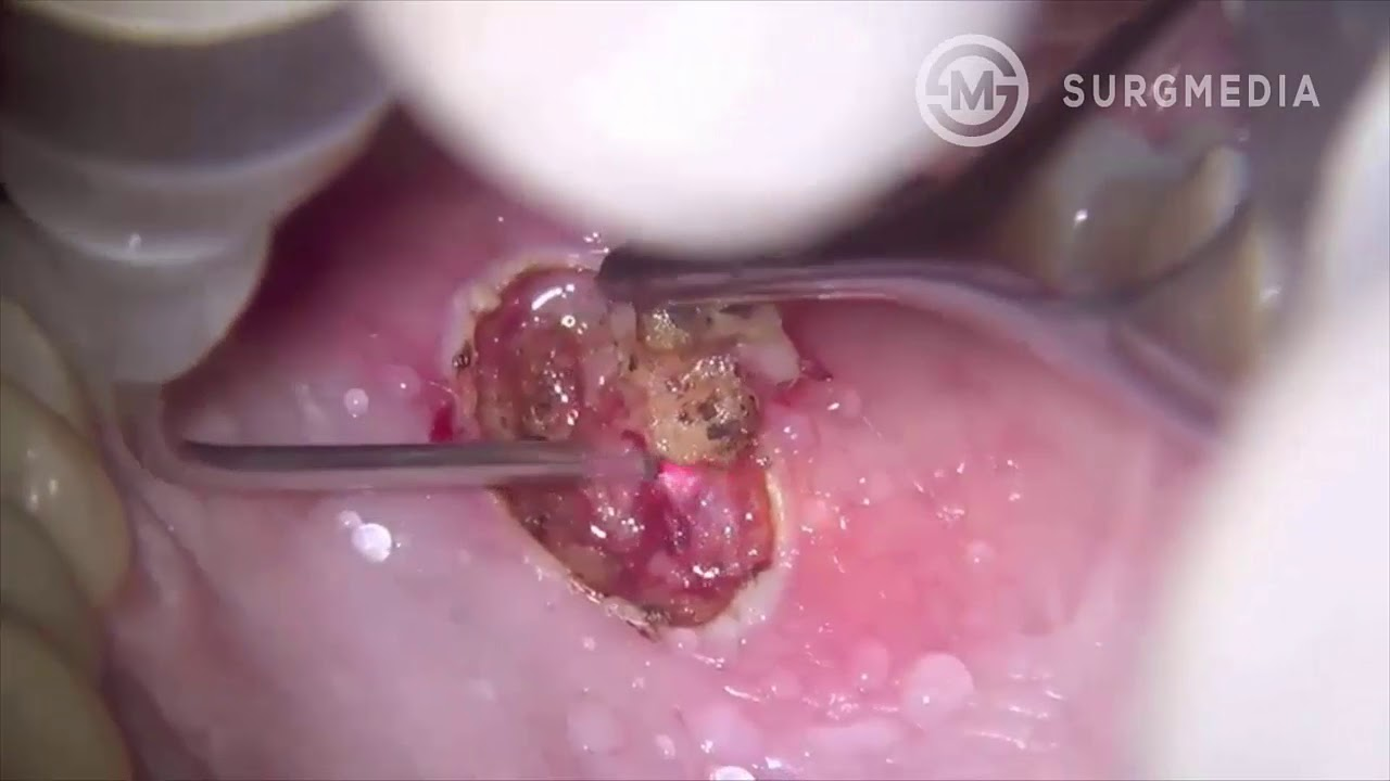 How to remove papilloma. Trimming Skin Tags : Skin Care FAQs papillary thyroid cancer tumor marker