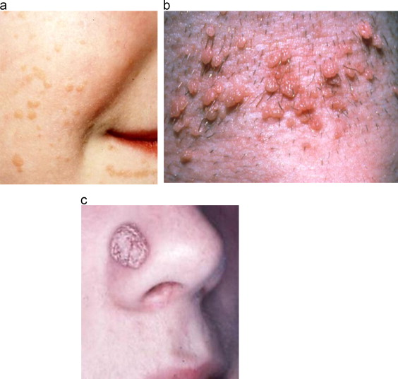 Hpv skin problems, Hpv and skin issues