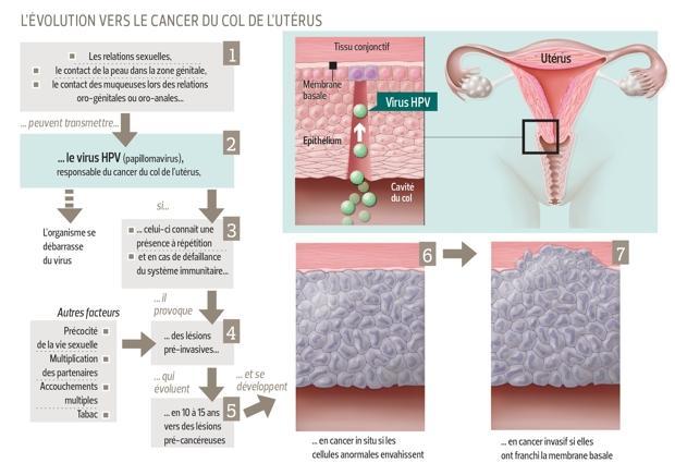 Hpv apres hysterectomie. Protecția gazdelor împotriva paraziților