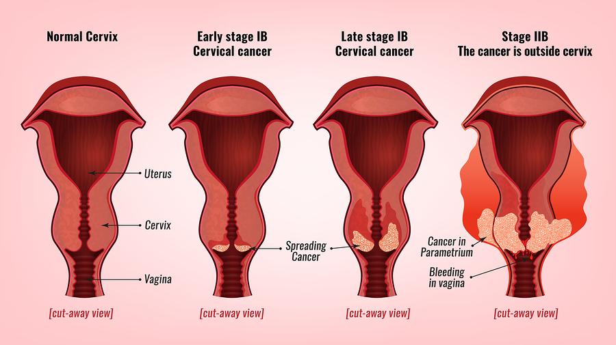 hpv causes bleeding