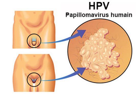 hpv femme grossesse