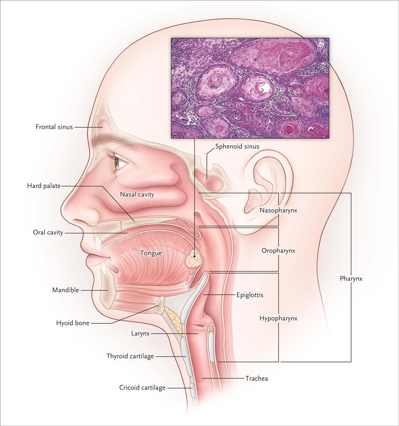 Incidence of hpv related head and neck cancer - Hpv head and neck cancer statistics