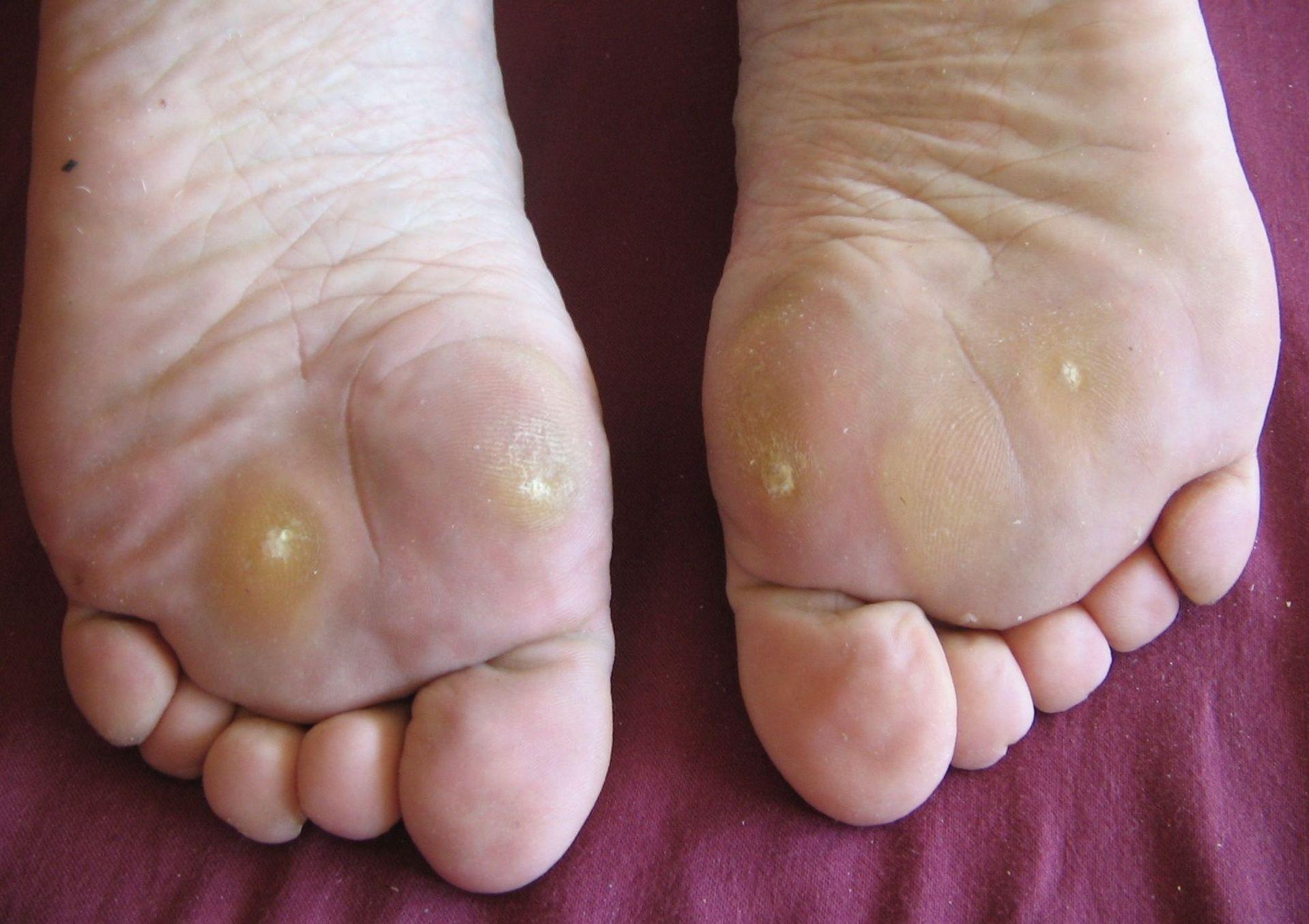 wart foot massage veruci unguent recenzii