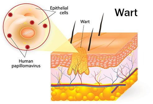 hpv non warts