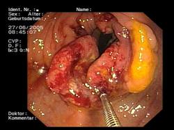 hpv of colon tratamentul fascioliazei umane