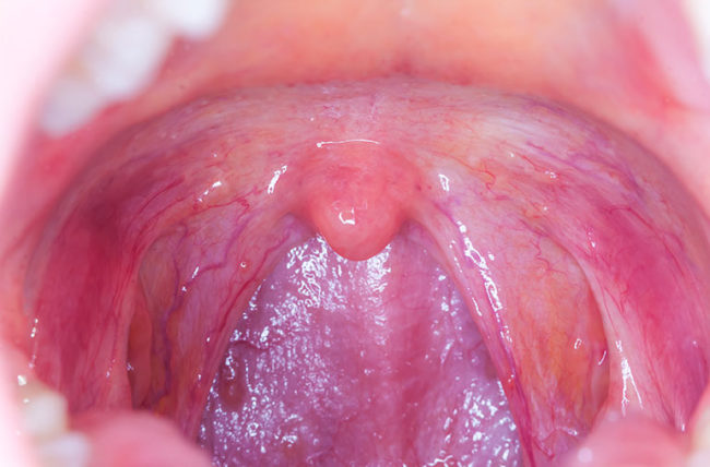 hpv papilloma tongue