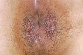 Human papillomavirus warts treatment