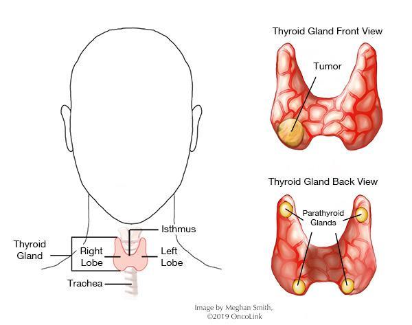 cancer linfoma abdominal