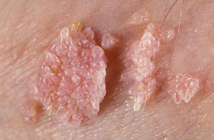hpv virus kod muskaraca human papillomavirus with treatment