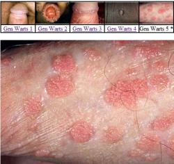 Lecba hpv viru u zen, Anemie u psa lecba Servizio report papilloma virus