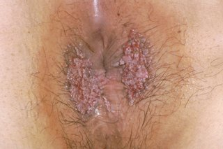 Hpv warts go away. Translation of