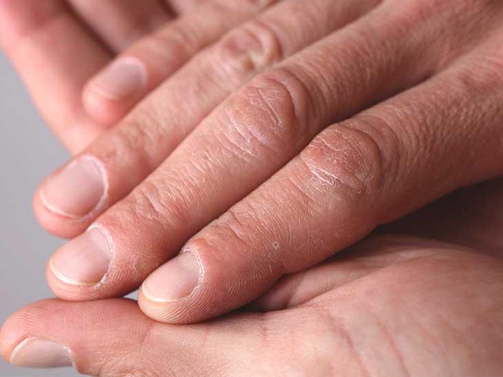 hpv warts on hand viermi în tratamentul uman