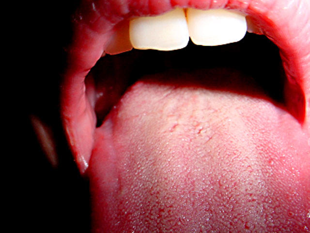 hpv warts tongue