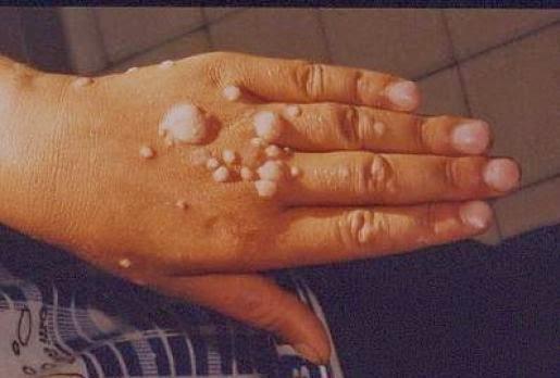 human papilloma virus spread through que cancer es el peor