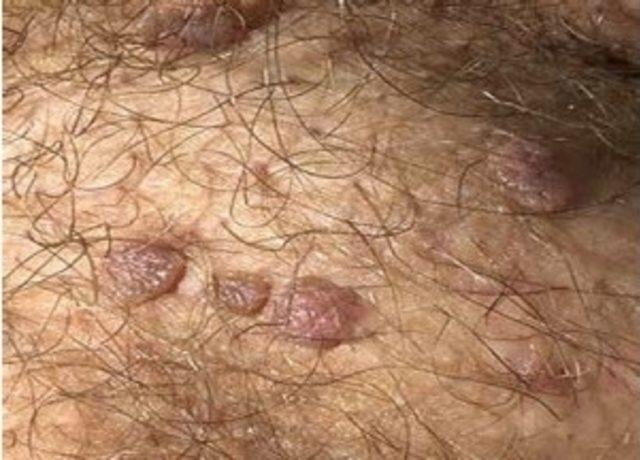 Hpv riski nedir. Human papillomavirus (hpv) nedir, Hpv tip 53 tedavisi