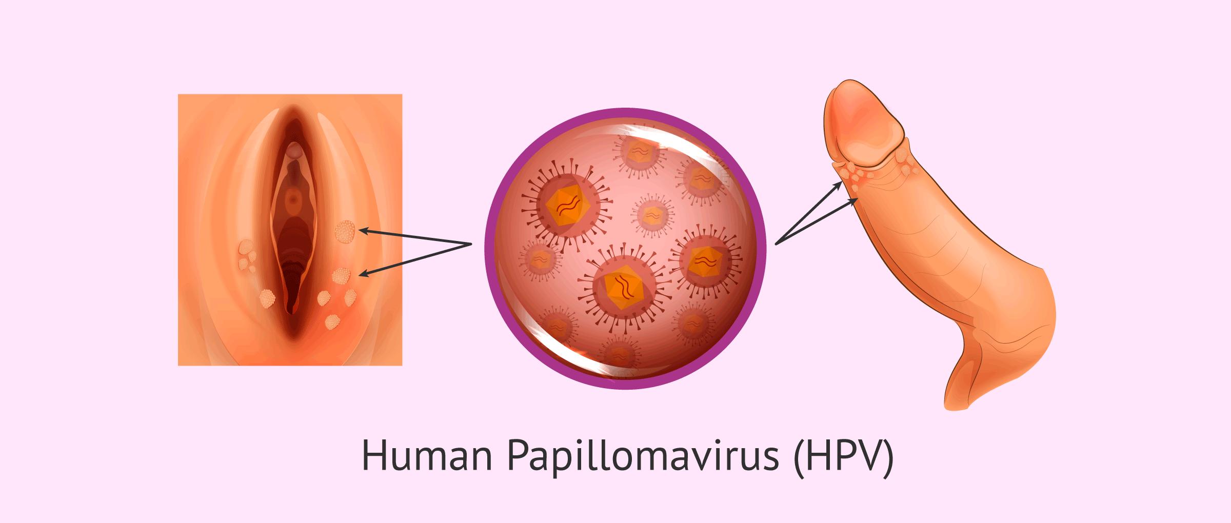 human papillomavirus hpv symptoms