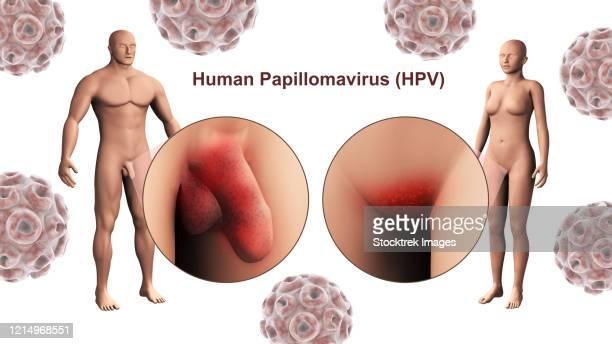 human papillomavirus infection male