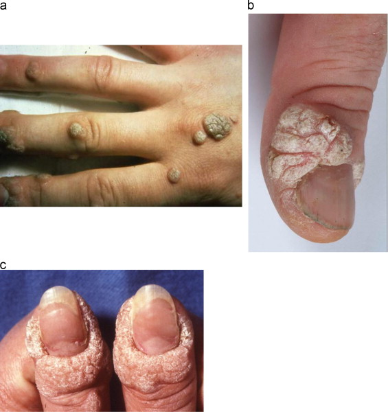 Hpv warts fingers, Hpv warts in fingers.