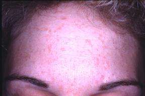 human papillomavirus skin infection