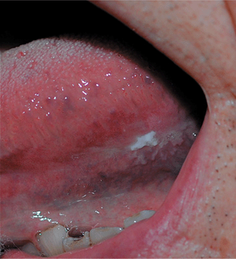 Inflamed squamous papilloma icd 10