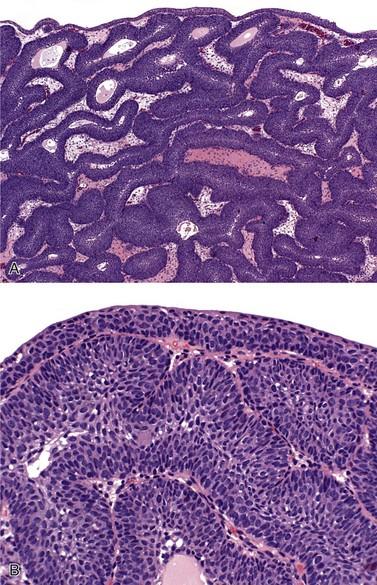 inverted papilloma bladder immunohistochemistry