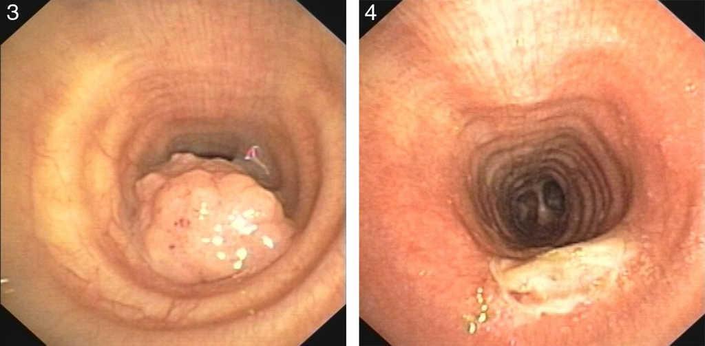 laryngeal tracheal papillomatosis specii de paraziți