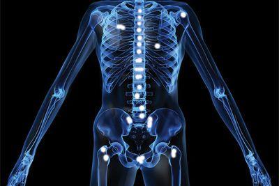 metastatic cancer bone pain