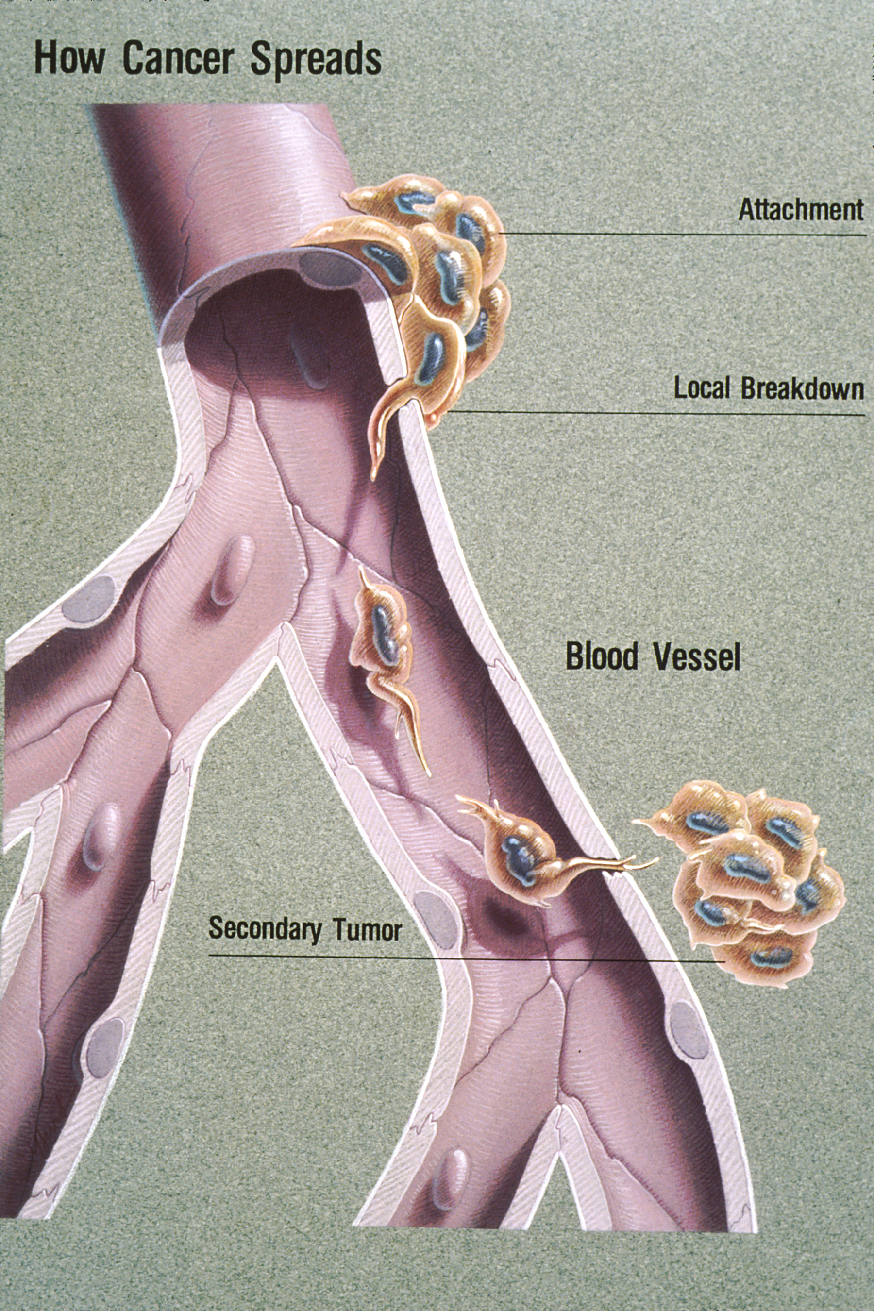 metastatic cancer dangerous