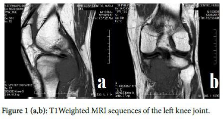 metastatic cancer knee pain
