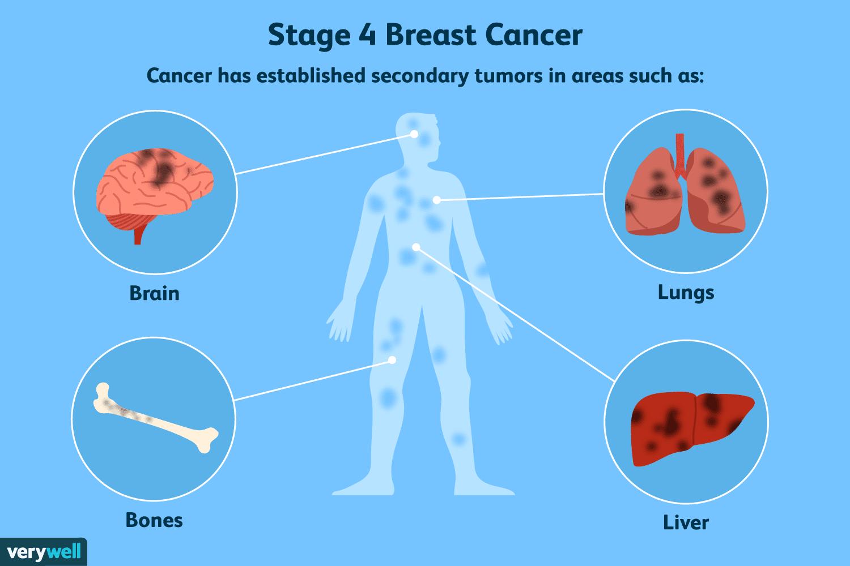 metastatic cancer no treatment taur vierme în inimă