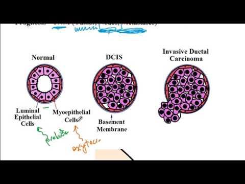 Hemoroizii - o boala de care nu-ti vine sa vorbesti, dar n-ai incotro