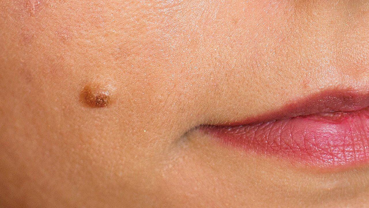 îndepărtarea papilomului pe buzele mici care este medicamentul pentru helminți