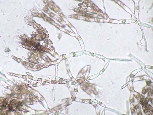 anemie paraneoplazica