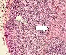 Neuroendocrine cancer prognosis. Aggressive cancer in throat