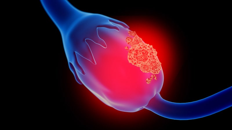 Ovarian cancer treatment guidelines. Ovarian cancer esmo guidelines