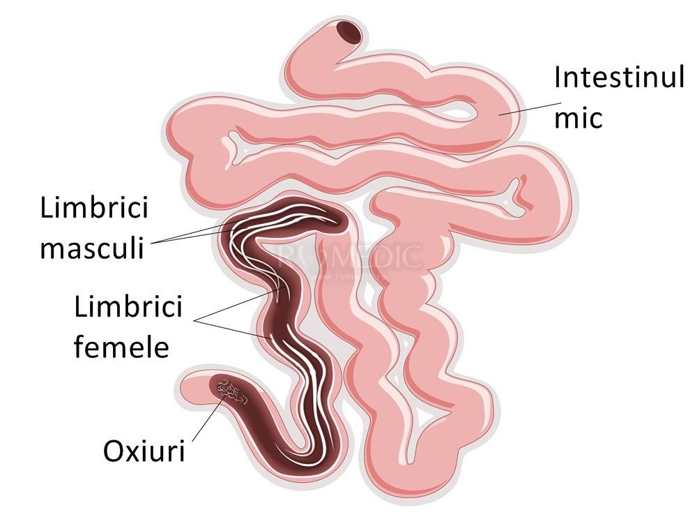 Oxiuri in gura, Limbricii, Lambliaza si Giardia au devenit rezistenti la medicamente