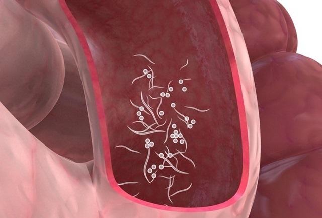 anemie paraneoplazica hpv alto rischio trasmissione