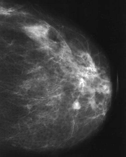 Papilloma atipico seno. Sintomas de papiloma en hombres
