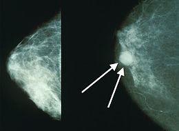 papilloma duttale mammario