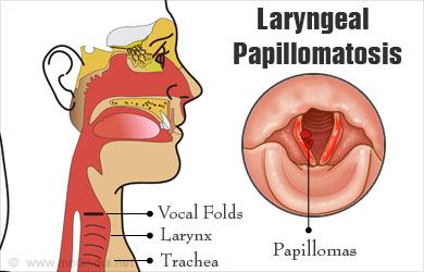 papilloma laryngeal