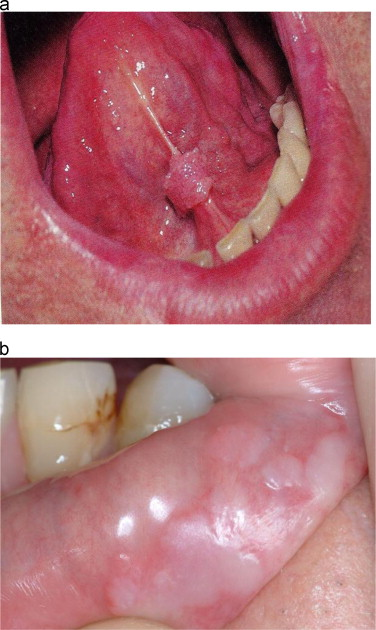 Hpv mouth sores