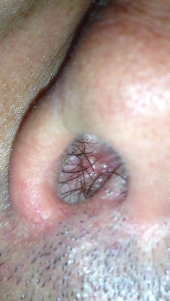 papilloma virus con lesioni