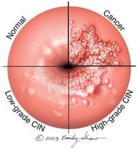 papilloma virus lesioni precancerose oua in helminti