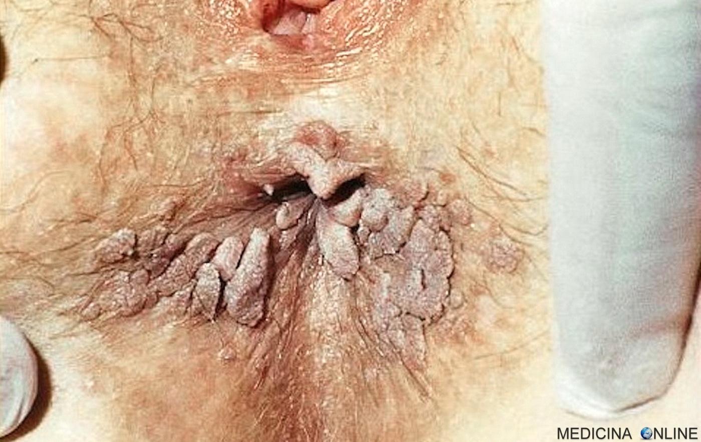papilloma virus si guarisce