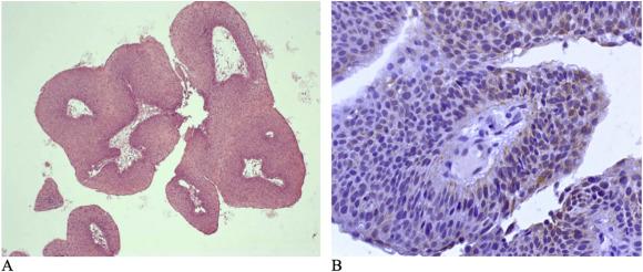 paraziți dpdx și sănătate viermi și produse derivate din viermi
