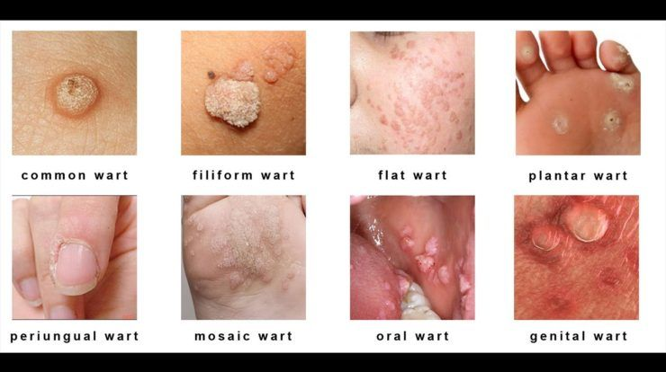 papillomavirus warts treatment