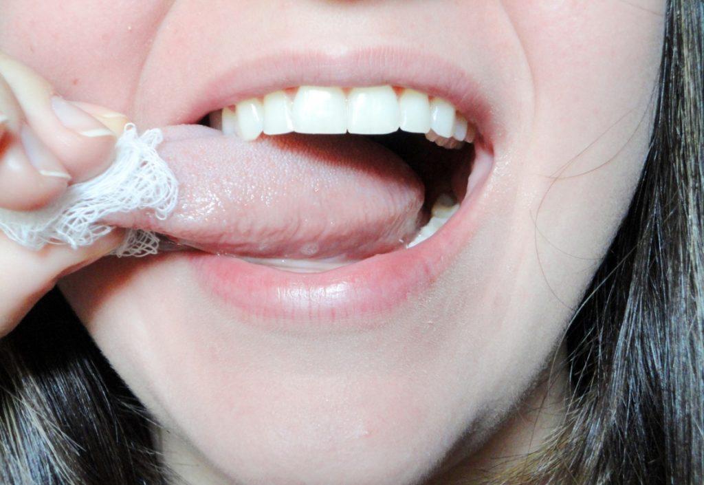 Papiloma en los labios dela boca tratamiento - topvacanta.ro - Papiloma boca tratamento