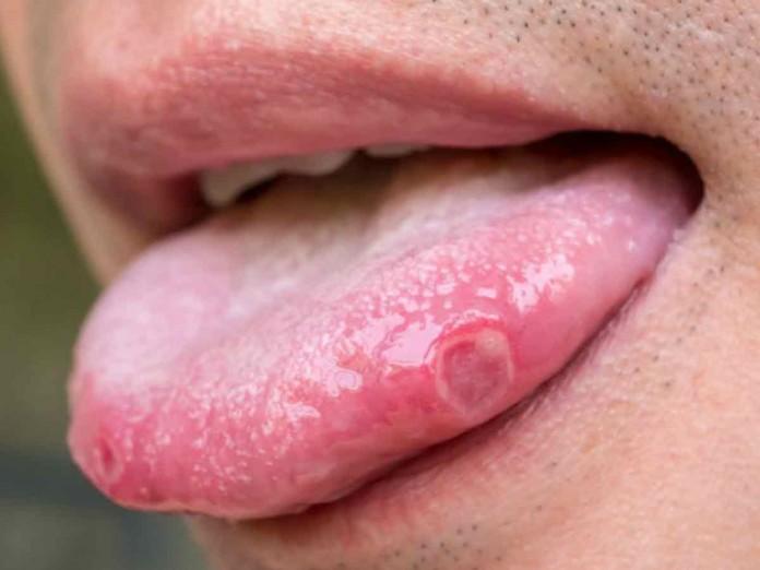 papiloma de la boca