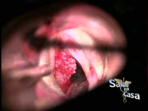 papiloma de uvula cie 10 hx of human papillomavirus icd 10