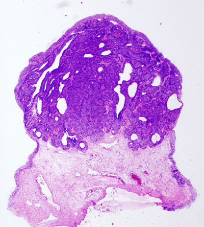 Hpv wart histology - Histopathology of confluent and reticulated papillomatosis